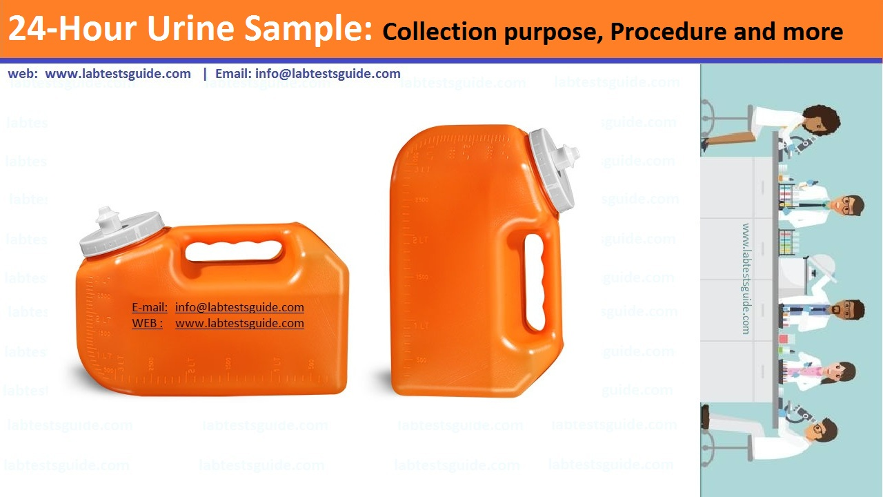 24 Hours Urine Sample Collection