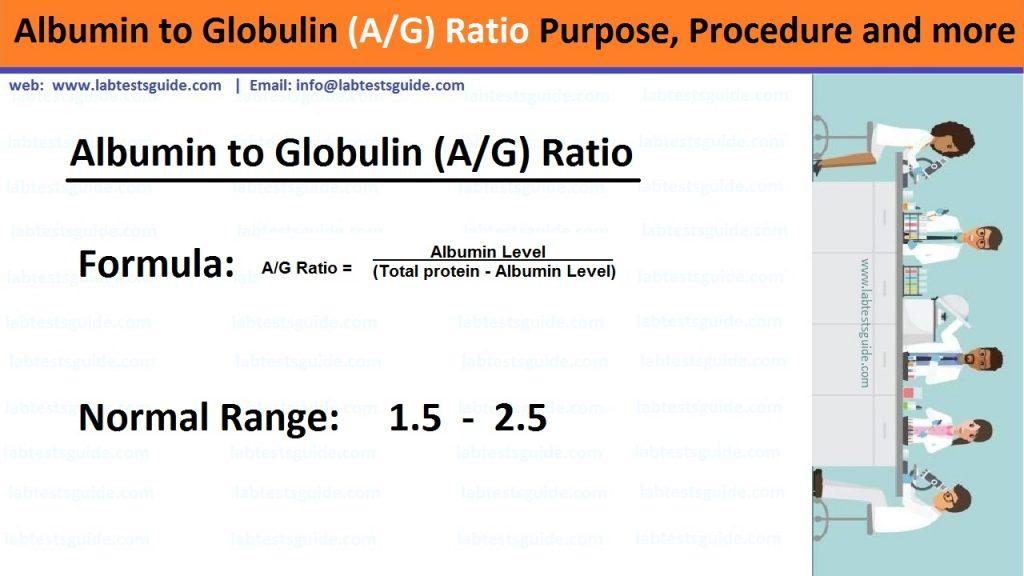 Albumin to Globulin Ratio