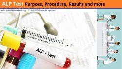 Alkaline Phosphatase Test