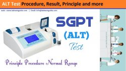 ALT Test Procedure