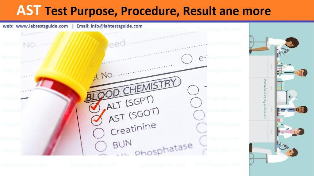 AST Test Purpose, Procedure, Values and more | Lab Tests Guide