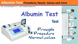 Albumin Test Procedure