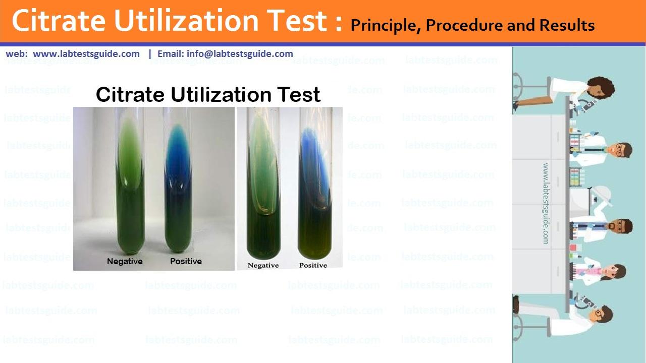 Citrate Utilization Test