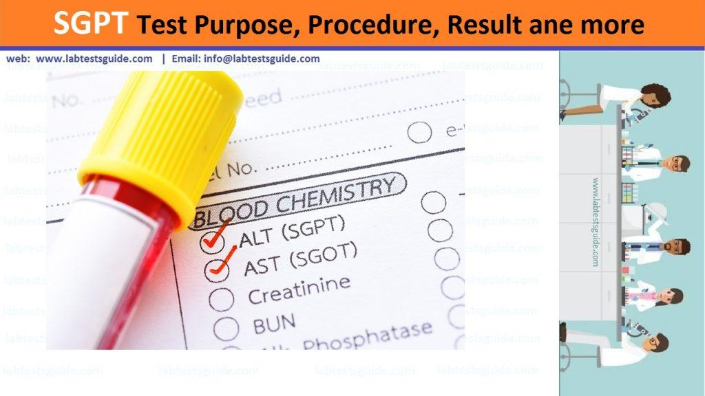 SGPT Test