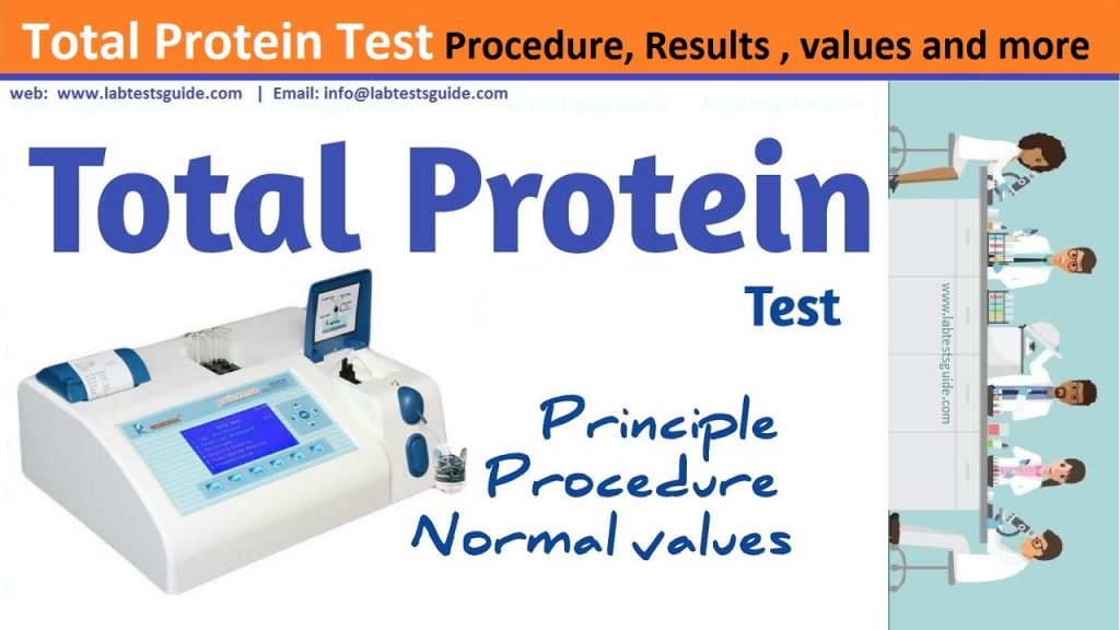 Total Protein Test Procedure
