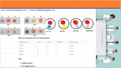 Blood Group Test Procedure