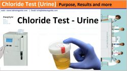 Chloride Test (Urine)