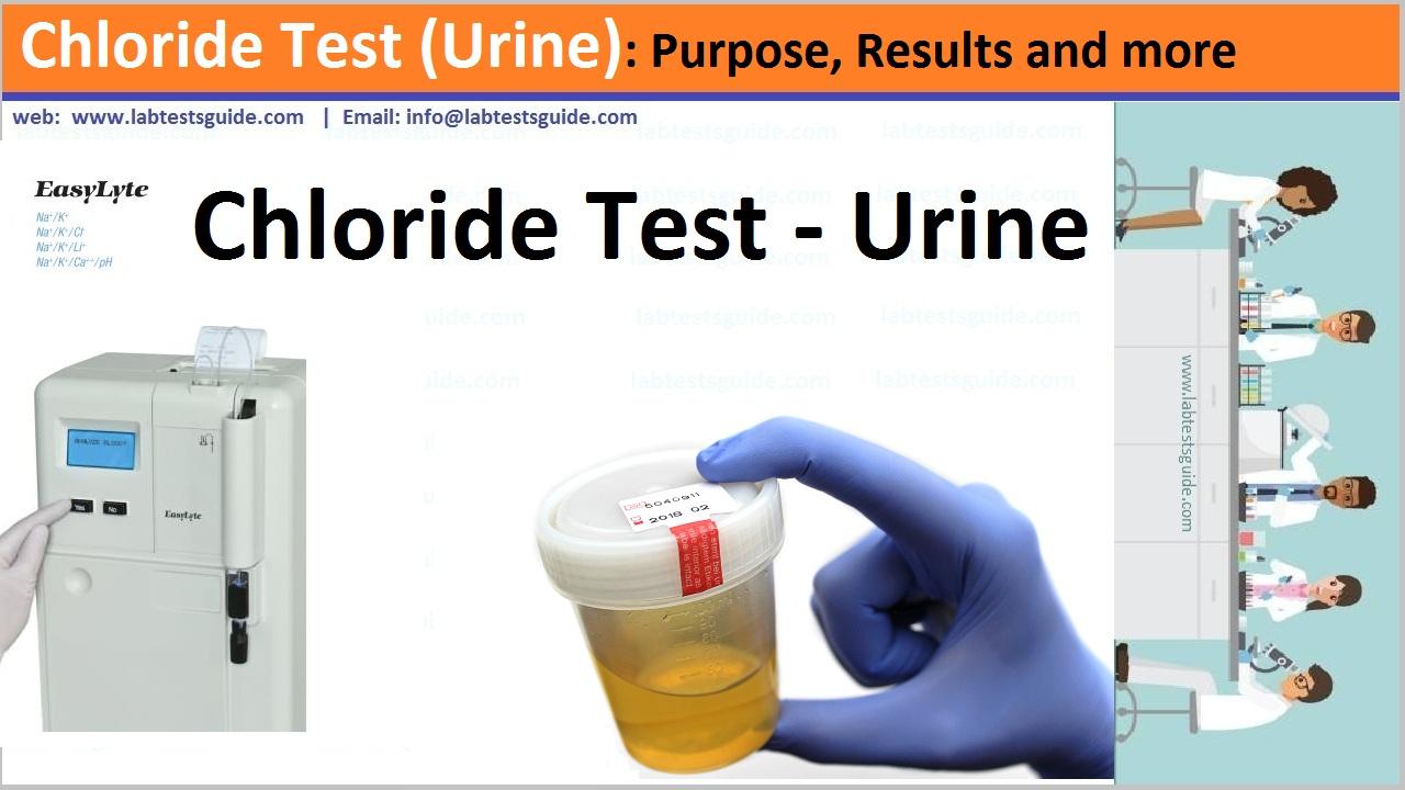 Chloride Test (Urine)