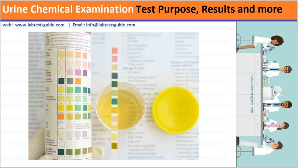 Urine Chemical Examination