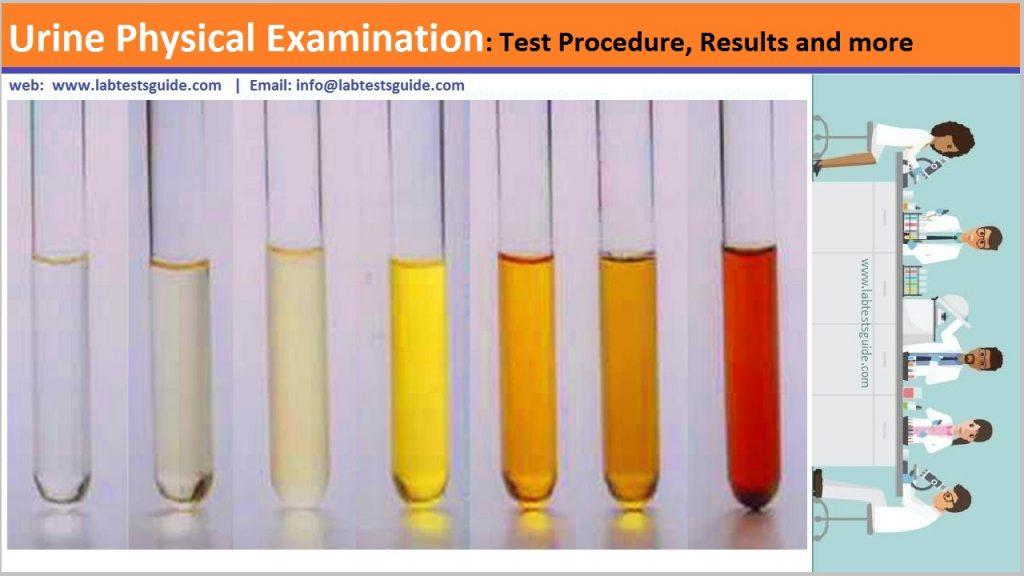 Physical Examination of Urine
