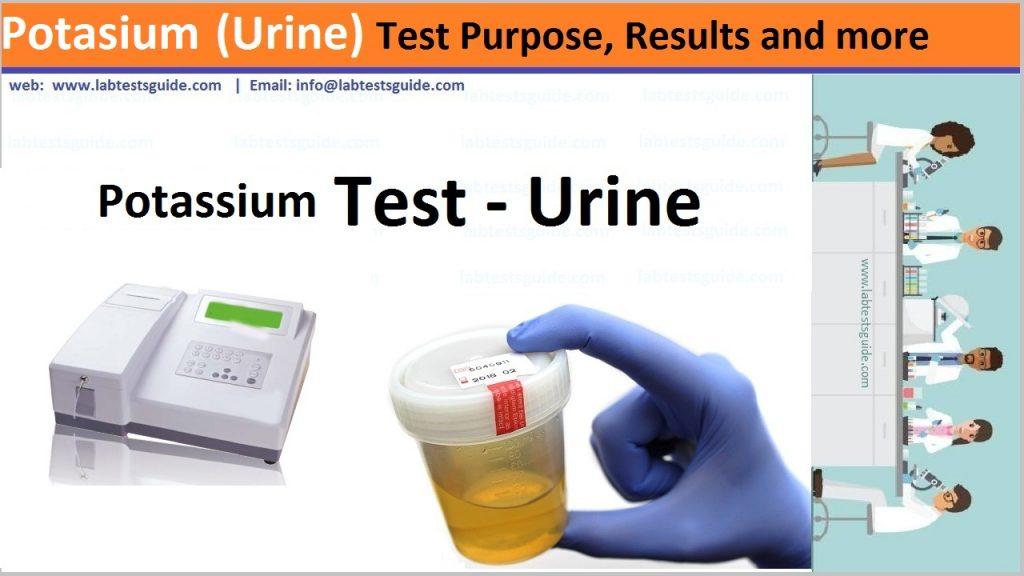 Potassium Test in urine