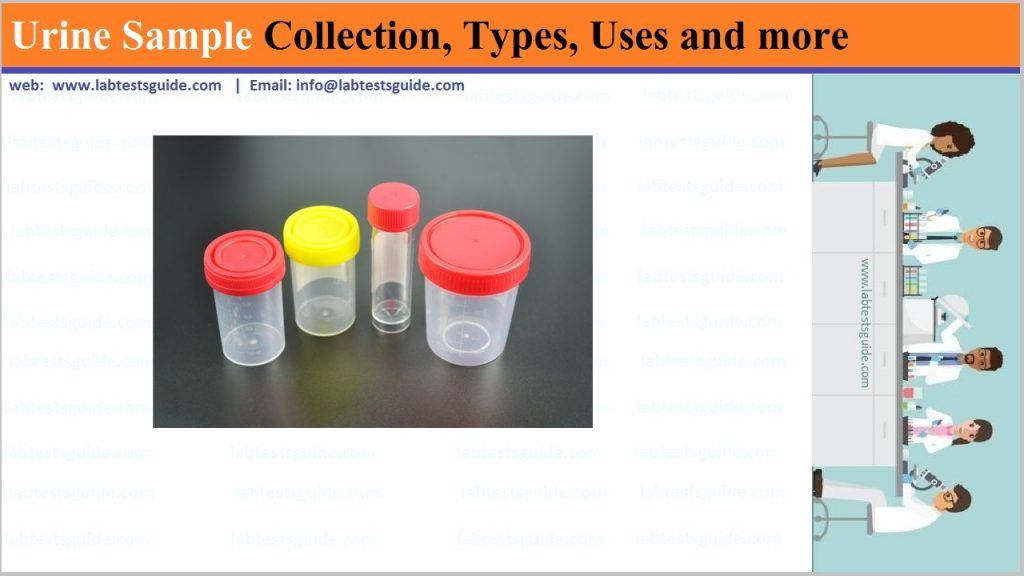 urine Sample Collections