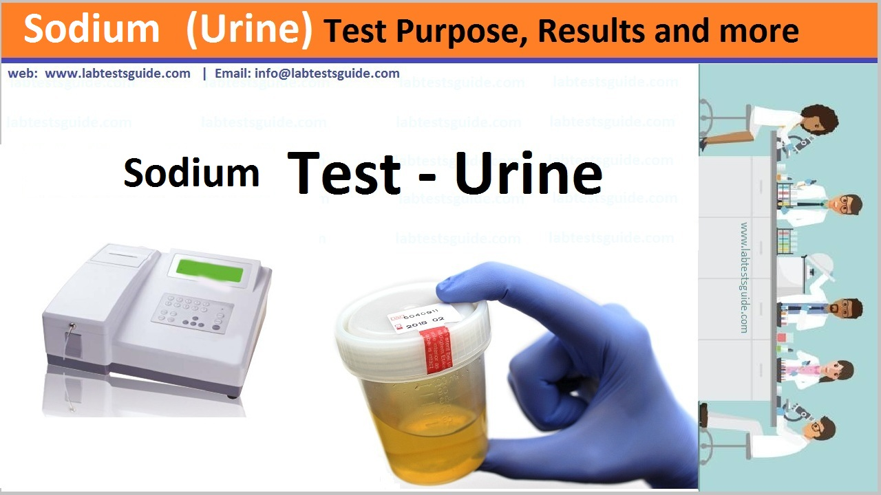 Sodium Test in urine