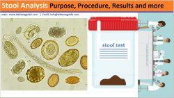 Stool Analysis Test