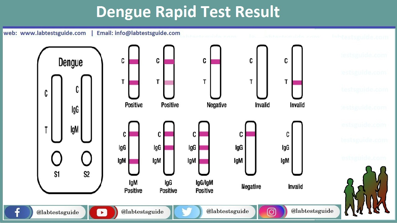 Dengue Rapid Test Result