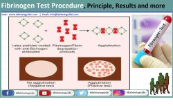 Fibrinogen Test Procedure