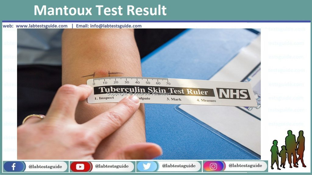 Mantoux Test Result