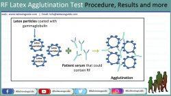 RF Latex Agglutination Test