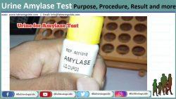 Urine Amylase Test