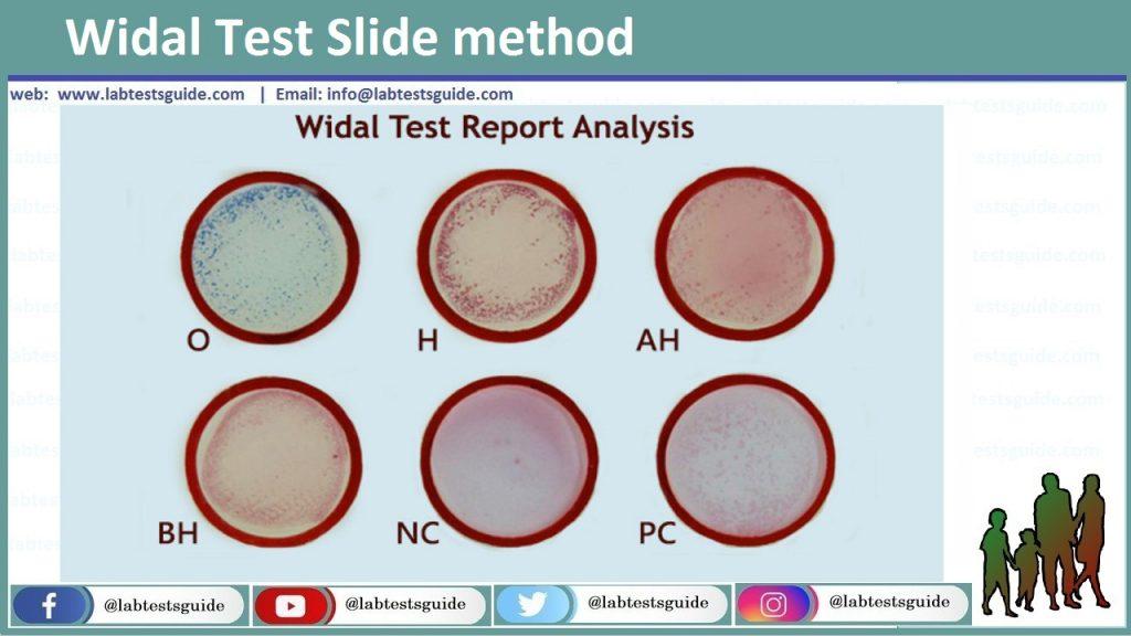 Widal Test Slide method