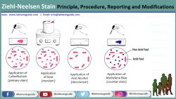 Ziehl-Neelsen Stain (ZN-Stain) : Principle, Procedure, Reporting and Modifications