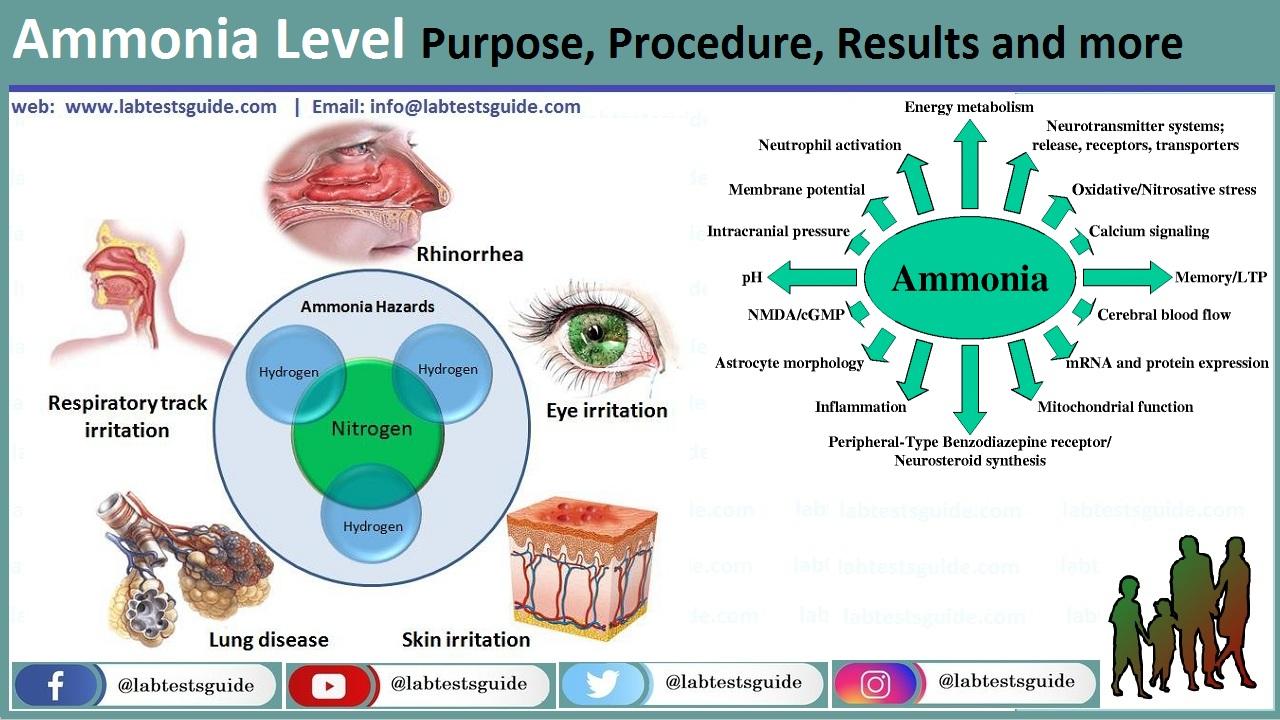Ammonia Level