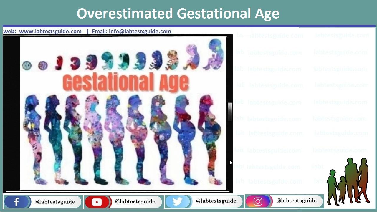Overestimated Gestational Age