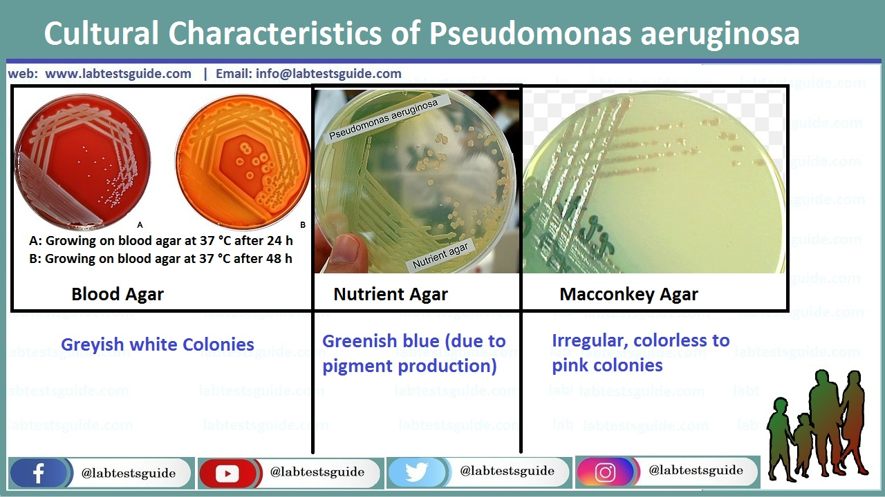 Cultural Characteristics of Pseudomonas aeruginosa