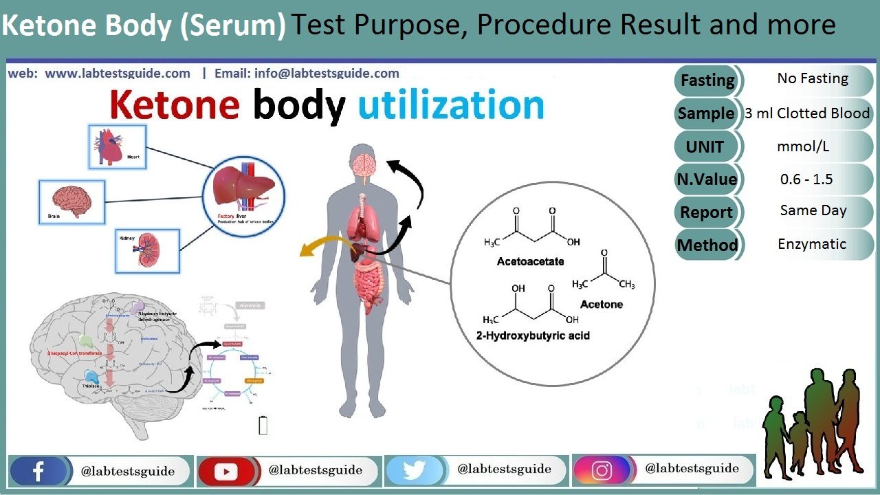 Serum Ketone Body