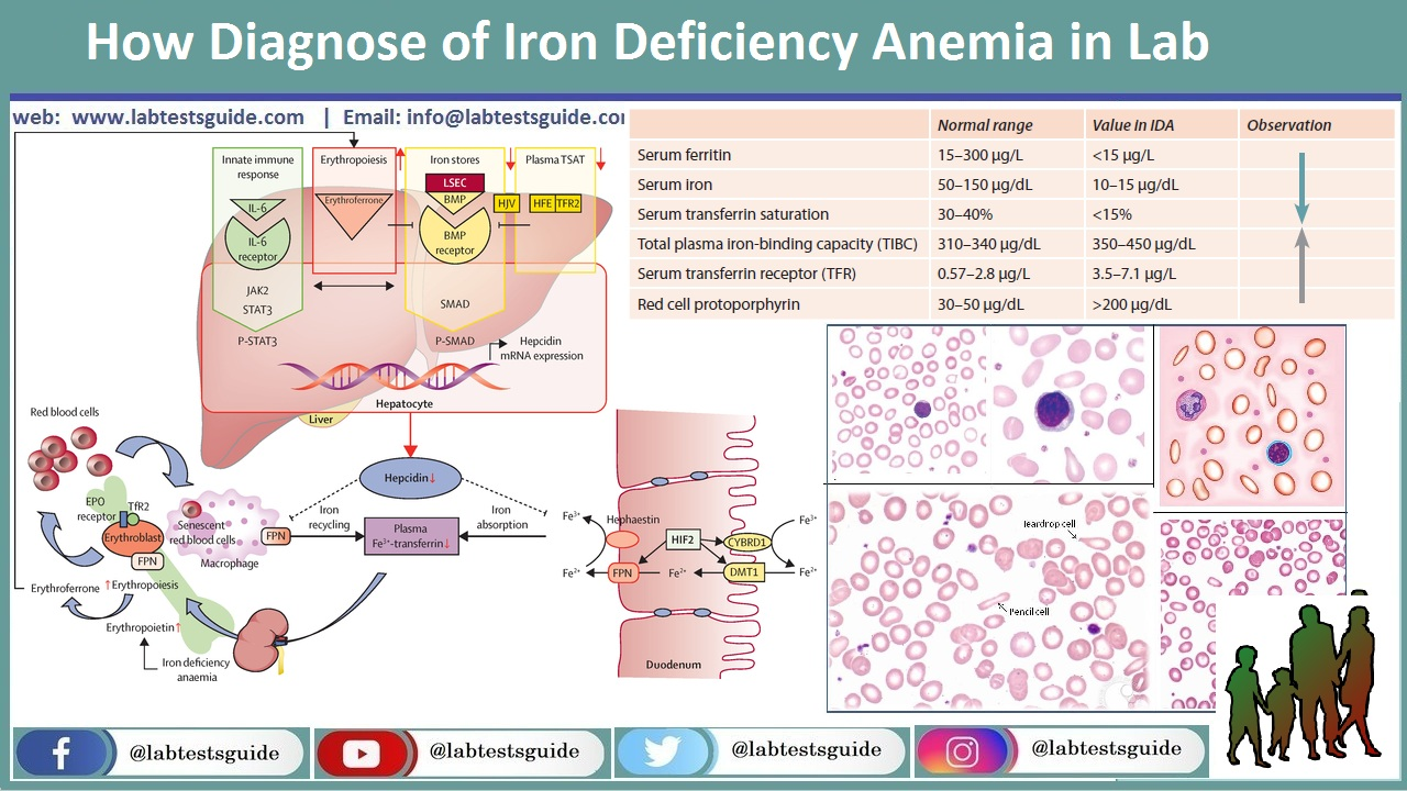 How Diagnose of Iron Deficiency Anemia in Lab